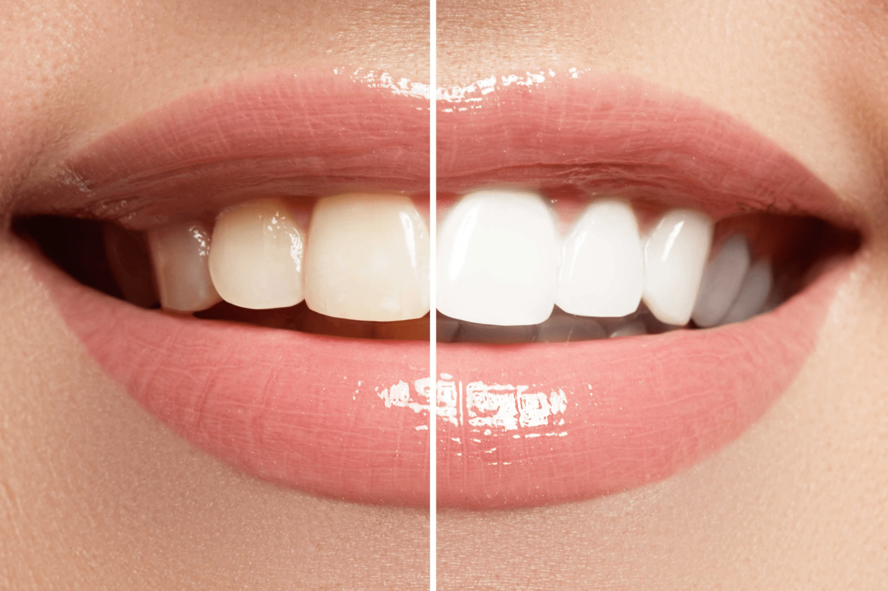 sbiancamento denti capriate san gervasio