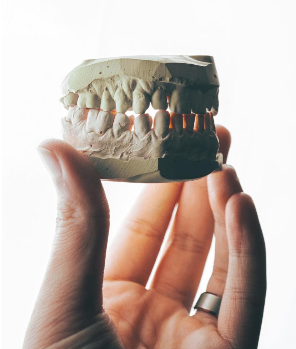 Parodontite-sovrappeso